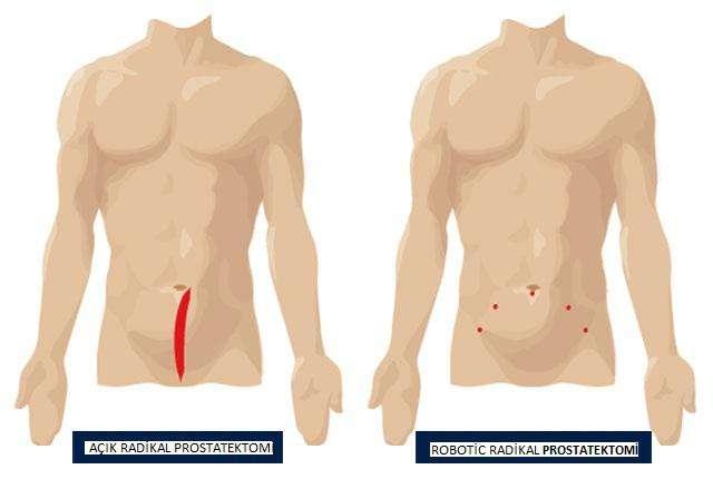 acik-radikal-prostatektomi