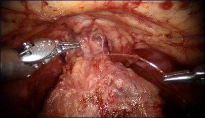 robotik-radikal-prostatektomi