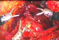radikal-robotik-prostatektomi